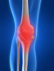 Lower Limb Problems - Pro-Physio